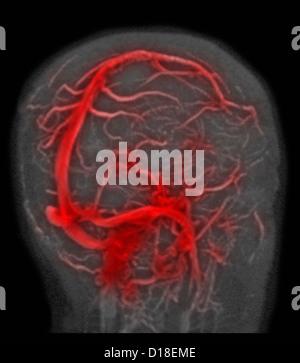 Normal brain MRI, magnetic resonance venography - Stock Photo