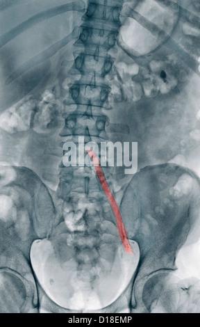 X-ray, aorto-iliac wire-mesh bypass graft - Stock Photo