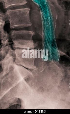X-ray showing a wiremesh aorto-iliac bypass graft - Stock Photo
