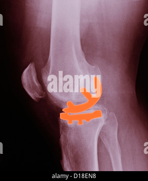 Knee X-ray, partial knee replacement - Stock Photo