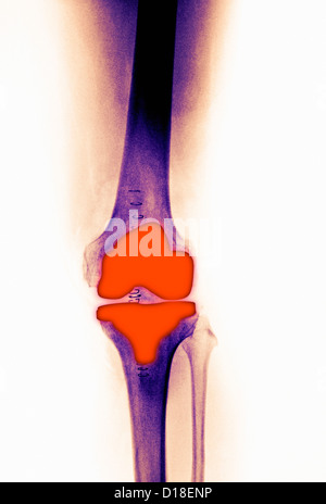 knee replacement in a 61 year old female