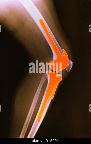 X-ray,  total knee replacement - Stock Photo