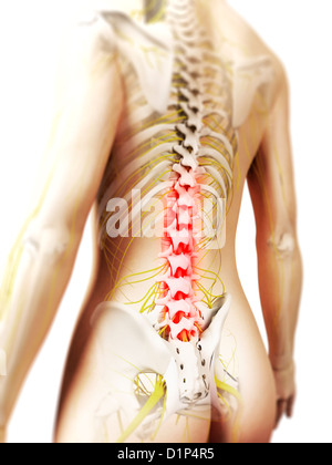 Back pain, conceptual artwork - Stock Photo