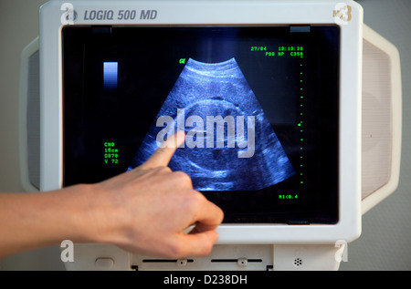 Essen, Germany, ultrasound scan of a pregnant woman - Stock Photo