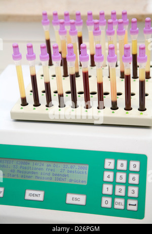 Essen, Germany, measurement of the erythrocyte sedimentation rate in a cytology laboratory - Stock Photo
