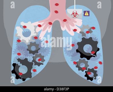 Illustrative image of human lungs infected by virus - Stock Photo