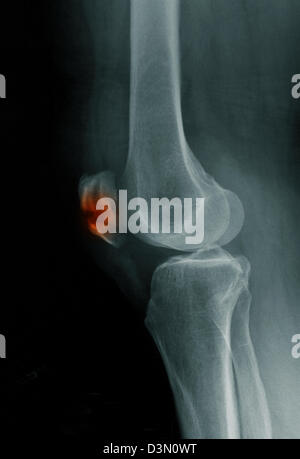 x-ray showing a fracture of the patella, kneecap - Stock Photo