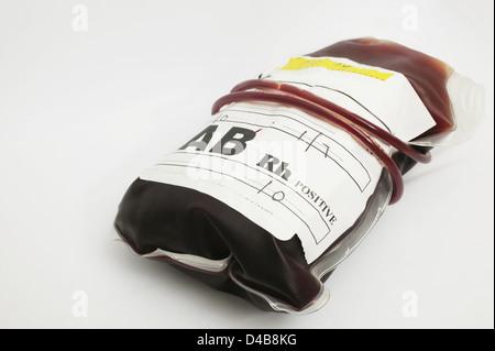 Blood group AB contains both B antigens has no Antibodies present presence presence RhD antigen Rhesus blood group - Stock Photo
