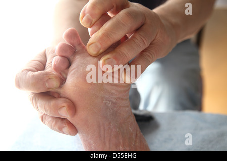 a man with dry skin on his foot and between his toes - Stock Photo