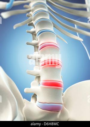 Back pain, conceptual artwork