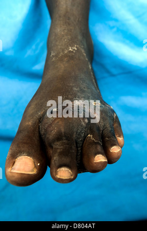 Actinomycetoma on the left foot of a 47 year old male. - Stock Photo