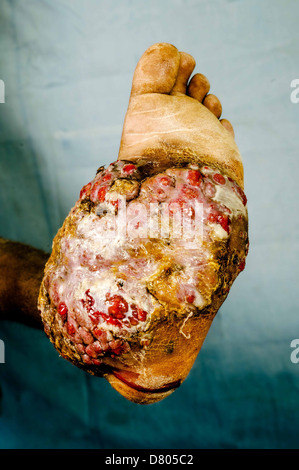 Severe eumycetoma of the left foot. - Stock Photo