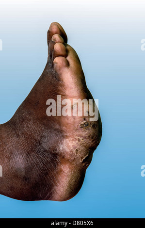 Mycetoma on the left foot of a young male. - Stock Photo