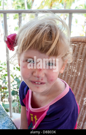 young girl on vacation with chicken pox,punta cana,dominican republic, caribbean - Stock Photo