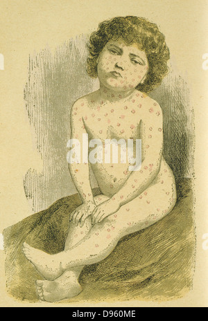 Child suffering from Measles  (Rubeola Morbilli), a widespread viral infection spread by air-borne droplets.  A - Stock Photo