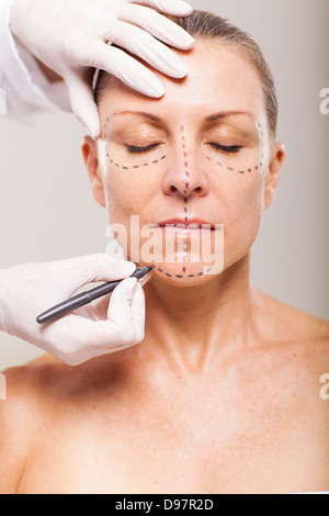 senior woman with correction lines preparing for plastic surgery - Stock Photo