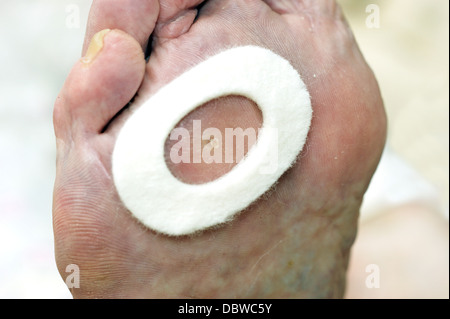 Elderly Woman With Specialised Corn Plasters The Feet To Relieve