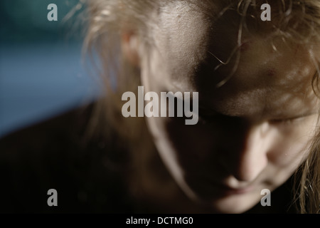 Bruises on forehead. Domestic violence - Stock Photo