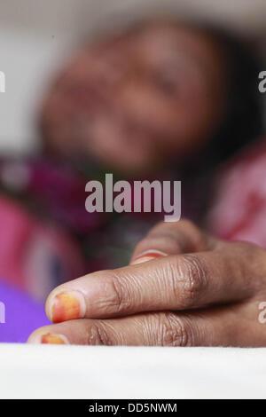 Dhaka, Bangladesh. 27th Aug, 2013. Under 17 girl Mukta acid attacks in Bangladesh cause of refusal of love. Almost - Stock Photo