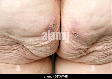 bedsore , pressure sore Stock Photo: 212004394 - Alamy