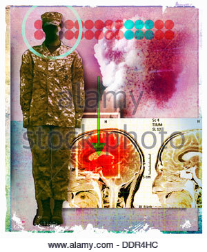 Image of inflamed brain next to soldier - Stock Photo