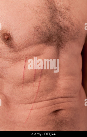 painful surface skin injury bleeding scratches on human male body caused metal wire - Stock Photo
