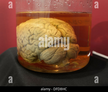 Human brain in a jar, Cornell University.  The brain is part of the Wilder Brain Collection - Stock Photo