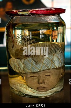Childs's head with Turkish Cap 1705 Anatomical Museum Bleulandinum  Dutch Netherlands - Stock Photo