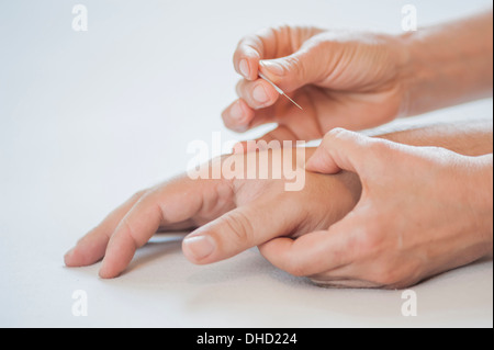Acupuncture Treatment Traditional Chinese Medicine Heat Lamp Stock Photo Royalty Free Image