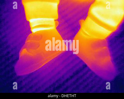 Thermal image of shoes of three month old baby - Stock Photo