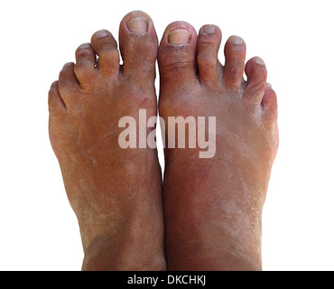 A pair of bare feet looking worse for wear. They are dry, scaly, and just ugly. - Stock Photo