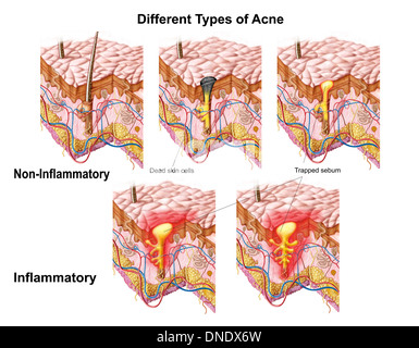 Acne vulgaris Stock Photo: 93392292 - Alamy