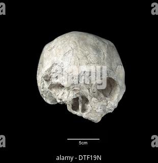 Homo sapiens skull
