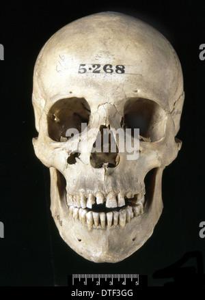 Homo sapiens skull (Italy) - Stock Photo
