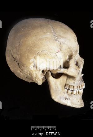 Homo sapiens skull (Italy)