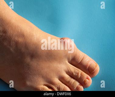 Painful bunion - Stock Photo