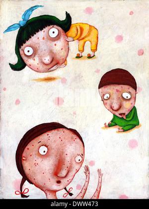 Illustration of children suffering from chicken pox - Stock Photo