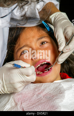 A dentist examines an Asian American girl patient's teeth in Newport Beach, CA. Note mirror and latex gloves. MODEL - Stock Photo