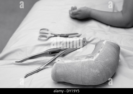 Removed child arm cast on hospital bed with child recovered arm in the background. Concept photo of children, health - Stock Photo