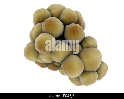 Microscopic view of tumor. - Stock Photo