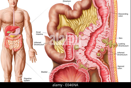 Illustration Of Diverticulosis In The Colon Stock Photo 68934578