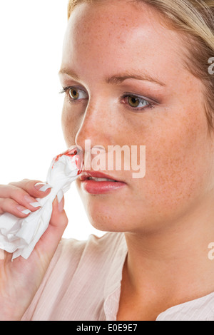 A young woman bleeds from her nose - Stock Photo