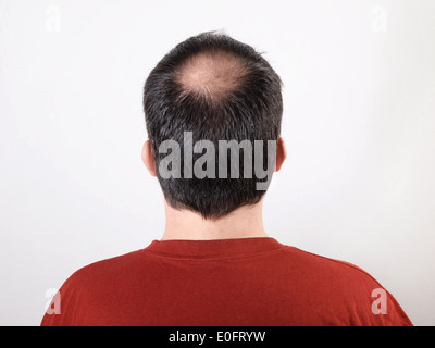 male head with thinning hair or alopecia - Stock Photo