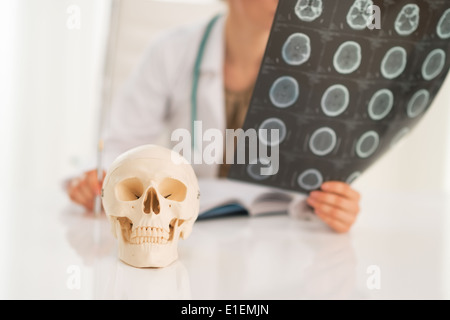 Closeup on human skull and medical doctor woman with fluorography in background - Stock Photo