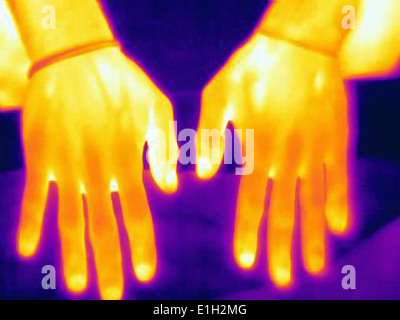 Thermal image of weight lifters hands. The image shows the heat left after training - Stock Photo