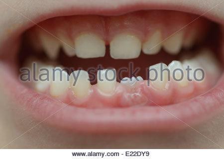 A child's milk teeth - Stock Photo
