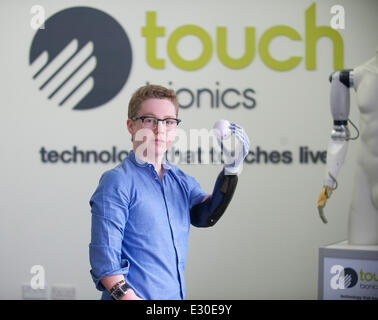Bionic Hand Stock Photo 108256227 Alamy