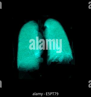 Three-dimensional computed tomographic reconstruction of healthy lungs. - Stock Photo