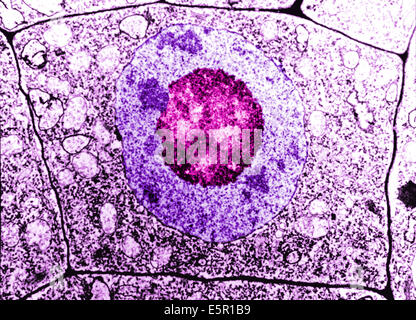 Electron Microscopy of a normal human cell, The cell membrane, nucleus and the nucleolus are all distinguishable. - Stock Photo
