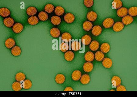 Color enhanced transmission electron micrograph (TEM) of Rotavirus, a type of RNA virus (Reoviridae) responsible - Stock Photo